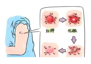 卡介苗接种部位