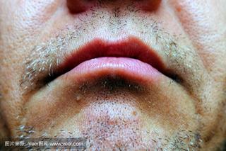 唇疱疹的偏方