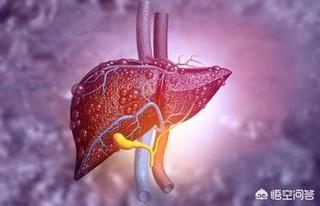 怎么消除脂肪肝