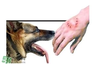 狂犬病能治吗