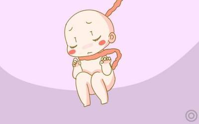 宝宝在肚子里脐带绕颈怎么回事