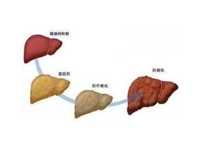 重度脂肪肝症状